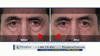 Plexaderm Skincare TV Spot, 'Look Your Best on Your Next Video Call: Free Shipping' - Thumbnail 8
