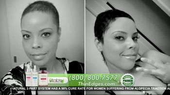 Vitalize 3-Part Hair Growth System TV Spot, 'Actually Works: Free Shipping' Featuring AJ Johnson - Thumbnail 6