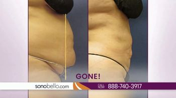 Sono Bello TV Spot, 'Stubborn Belly Fat: $250 Off' - Thumbnail 2