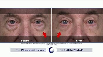 Plexaderm Skincare TV Spot, 'Confidence: Videos: $14.95 Trial' - Thumbnail 6