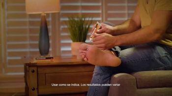 Derman TV Spot, 'La picazón de la pasión' [Spanish] - Thumbnail 4