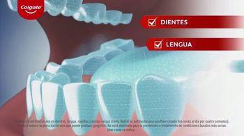 Colgate Total SF TV Spot, 'Protección antibacteriana en toda la boca' [Spanish] - Thumbnail 5