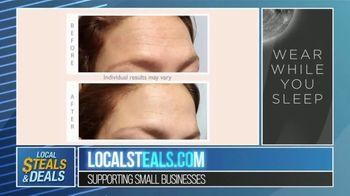 Local Steals & Deals TV Spot, 'Beauty Boost: Wrinkles Schminkles' - Thumbnail 5
