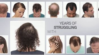 Hair Club TV Spot, 'Years Struggling' - Thumbnail 1