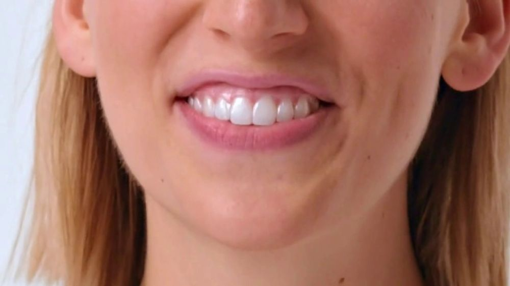 Smile Direct Club Aligner TV Commercial, 'Works Simply'