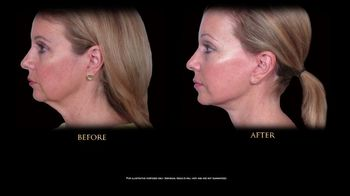 Perfect Body Laser and Aesthetics TV Spot, 'Tired of Looking Older' - Thumbnail 1