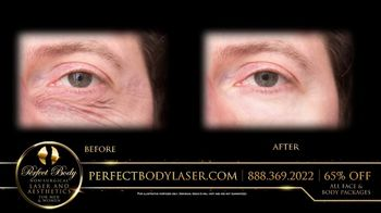 Perfect Body Laser and Aesthetics TV Spot, 'Tired of Looking Older' - Thumbnail 2