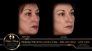Perfect Body Laser and Aesthetics TV Spot, 'Tired of Looking Older' - Thumbnail 8