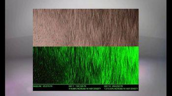 Xcellerate 35 TV Spot, 'Tu cabello' [Spanish] - Thumbnail 4