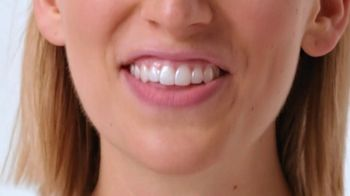 Smile Direct Club Aligner TV Spot, 'Works Simply: Less Than $3 a Day'