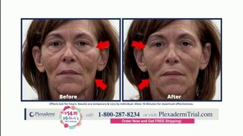 Plexaderm Skincare Mother's Day Special TV Spot, 'Hottest Videos: $14.95' - Thumbnail 5