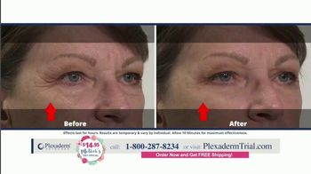 Plexaderm Skincare Mother's Day Special TV Spot, 'Hottest Videos: $14.95' - Thumbnail 8
