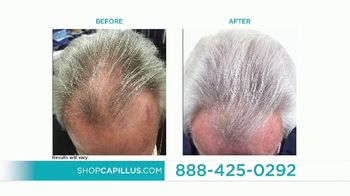 Capillus Memorial Day Sale TV Spot, 'Treat Hair Loss at Home' - Thumbnail 5