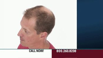 Hair Club EXT Extreme Hair Therapy TV Spot, 'Get Your Real Hair Back' Ft. Forrest Griffin - Thumbnail 3