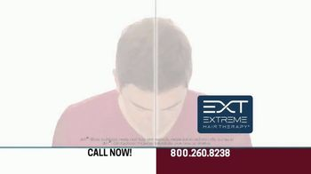 Hair Club EXT Extreme Hair Therapy TV Spot, 'Get Your Real Hair Back' Ft. Forrest Griffin - Thumbnail 4