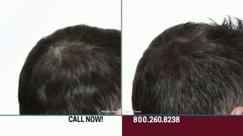 Hair Club EXT Extreme Hair Therapy TV Spot, 'Get Your Real Hair Back' Ft. Forrest Griffin - Thumbnail 6