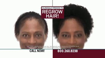 Hair Club EXT Extreme Hair Therapy TV Spot, 'Get Your Real Hair Back' Ft. Forrest Griffin - Thumbnail 7