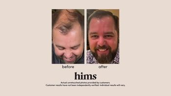 Hims TV Spot, 'Old Vacation Photos: Free Online Visit' - Thumbnail 5