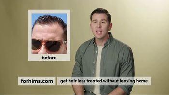 Hims TV Spot, 'Hair Loss Treatment: Free First Month' - Thumbnail 4