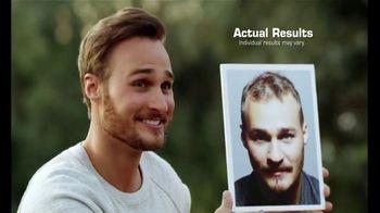 Bosley TV Spot, 'Eyes, Teeth, Hair'