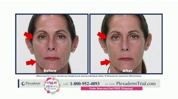 Plexaderm Skincare Mother's Day Special TV Spot, 'Wow: $14.95' - Thumbnail 9