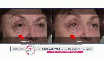 Plexaderm Skincare Mother's Day Special TV Spot, 'Ten Minute Challenge: $14.95' - Thumbnail 3