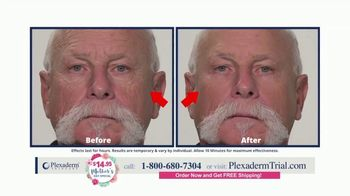 Plexaderm Skincare Mother's Day Special TV Spot, 'Ten Minute Challenge: $14.95' - Thumbnail 8