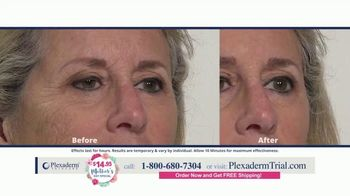 Plexaderm Skincare Mother's Day Special TV Spot, 'Ten Minute Challenge: $14.95' - Thumbnail 9