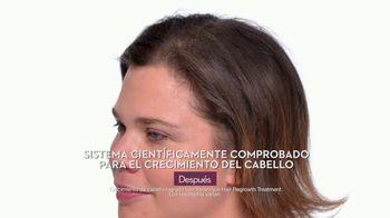 Keranique TV Spot, 'Avergonzadas' [Spanish]