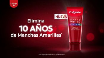 Colgate Optic White Renewal TV Spot, 'Elimina 10 años de manchas amarillas' [Spanish] - Thumbnail 6