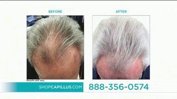 Capillus Semi Annual Sale TV Spot, 'Treat Hair Loss at home' - Thumbnail 5