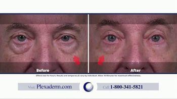 Plexaderm Skincare TV Spot, 'Spoons, Ice Cubes & Hemorrhoid Cream: 50 Percent Off' - Thumbnail 1