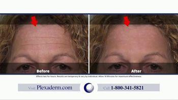 Plexaderm Skincare TV Spot, 'Spoons, Ice Cubes & Hemorrhoid Cream: 50 Percent Off' - Thumbnail 5