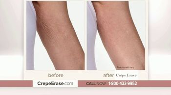 Crepe Erase Advanced TV Spot, 'Changed My Life' Featuring Jane Seymour - Thumbnail 2