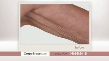 Crepe Erase Advanced TV Spot, 'TruFirm Complex' Featuring Andrew Ordon - Thumbnail 6