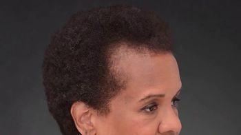 Toppik TV Spot, 'Full Hair Instantly: $39.99' - Thumbnail 1