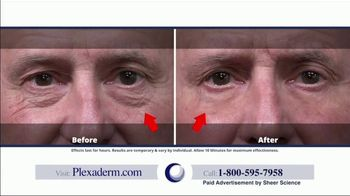 Plexaderm Skincare TV Spot, 'Up to 50% Off' - Thumbnail 2