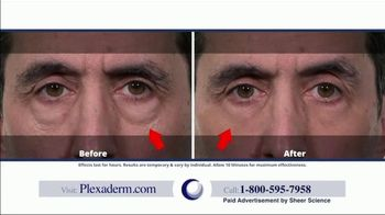 Plexaderm Skincare TV Spot, 'Up to 50% Off' - Thumbnail 6