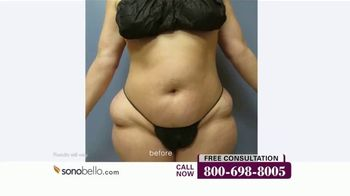 Sono Bello Employee Only Pricing TV Spot, 'Celebrating Body Transformations' - Thumbnail 6