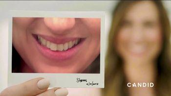 Candid Co. TV Spot, 'Childhood Braces'