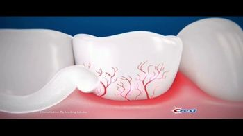 Crest Gum and Sensitivity TV Spot, 'Brain Freeze' - Thumbnail 6