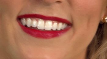 Plus White Speed Whitening System TV Spot, 'When You're Smiling' Song by Dean Martin - Thumbnail 4