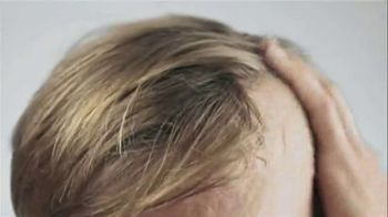 Capillus Laser Cap TV Spot, 'Treat Hair Loss at Home' - Thumbnail 1