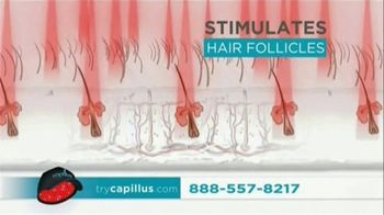 Capillus Laser Cap TV Spot, 'Treat Hair Loss at Home' - Thumbnail 2