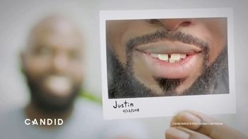 Candid Co. TV Spot, 'Justin: Before & After Testimonial'