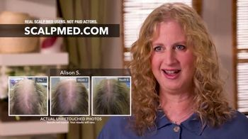 15th Anniversary Celebration: Are You Losing Your Hair? thumbnail