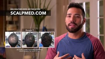 ScalpMED 15th Anniversary Celebration TV Spot, 'Are You Losing Your Hair?' - Thumbnail 6