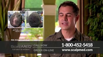 ScalpMED 15th Anniversary Celebration TV Spot, 'Are You Losing Your Hair?' - Thumbnail 7