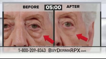DermaRPX TV Spot, 'Anti-Aging Skin Care' - Thumbnail 2
