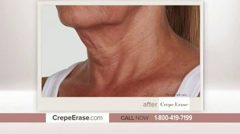 Crepe Erase Advanced TV Spot, 'Younger-Looking Skin Again' Featuring Andrew Ordon - Thumbnail 5